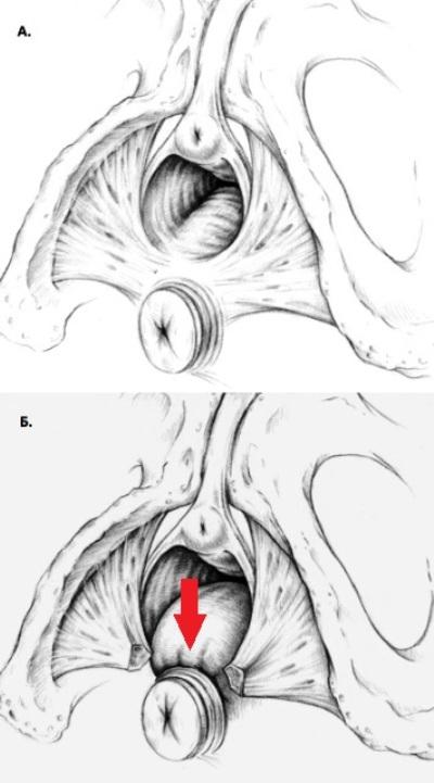 Разрыв промежности и ректоцеле
