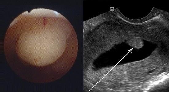 Патология эндометрия матки полипы